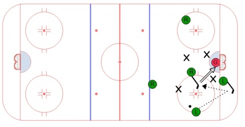 1-3-1 Power Play Option - Low Set